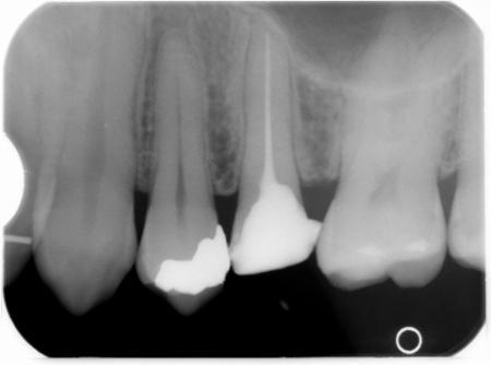 Zahn mit Wurzelfüllung